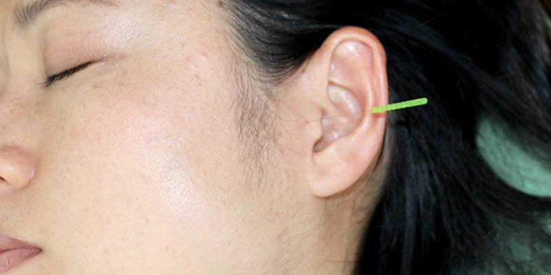 突発性難聴の治療