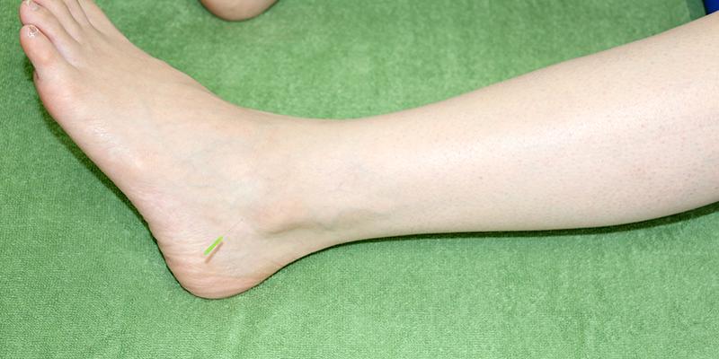 足首 靭帯 損傷 全治